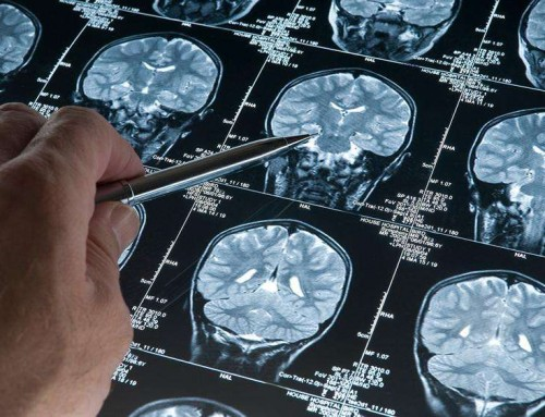 Biogen pushes for FDA approval of Alzheimer's drug