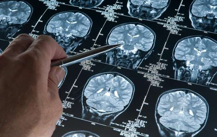 the-latest-in-alzheimers-research-free-class